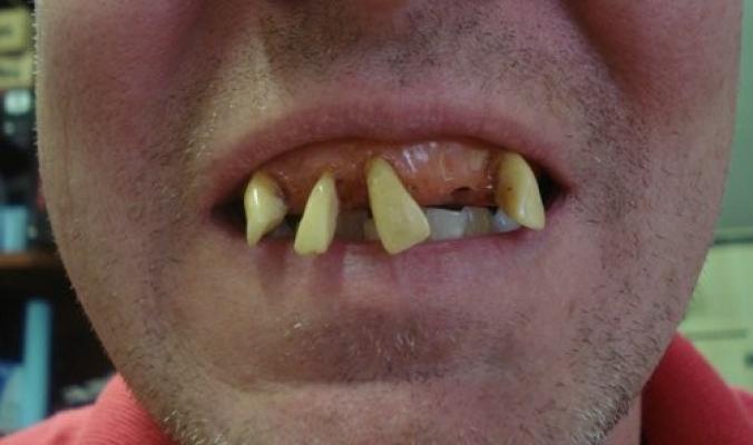 أسنان بيلي بوب