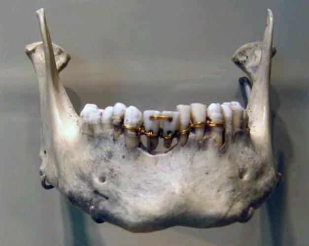 جسور الأسنان
